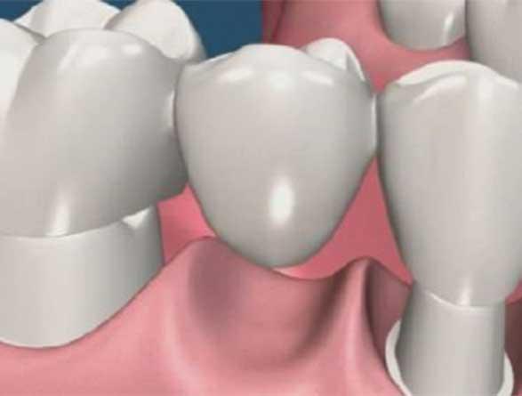 Κλασσική Οδοντιατρική Denta