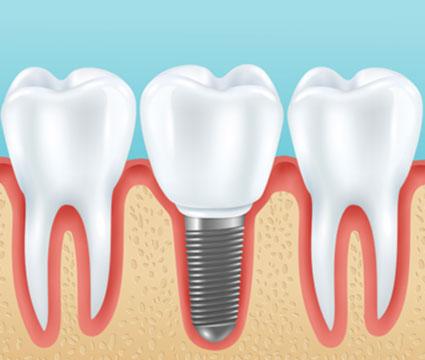 Εμφυτευματολογία Denta