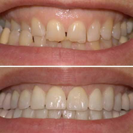 Αισθητική Οδοντιατρική Denta