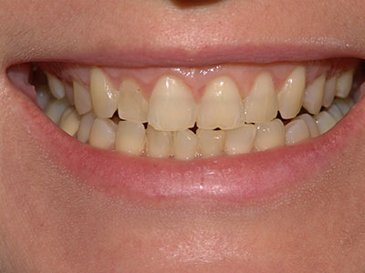 Λεύκανση Δοντιών Denta