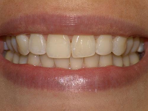 Αφαίρεση Δυσχρωμιών Denta