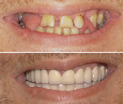 Προσθετική Denta